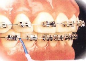 Apparecchio dentale fisso igiene