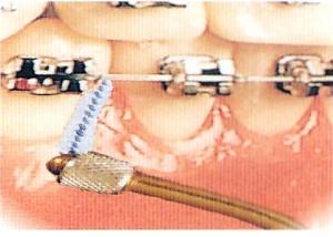 Apparecchio dentale fisso igiene filo interdentale