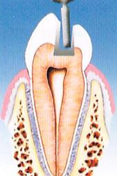 denti cariati carie dentali