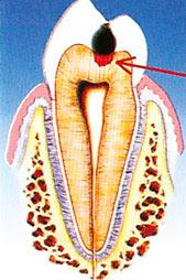 fase iniziale carie dentale