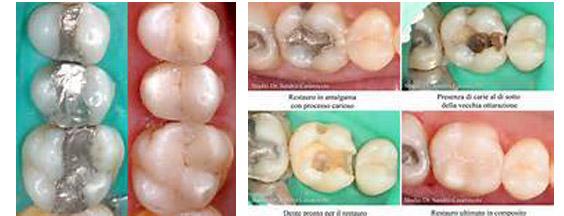 conservativa per carie dentale dott. marco dormi