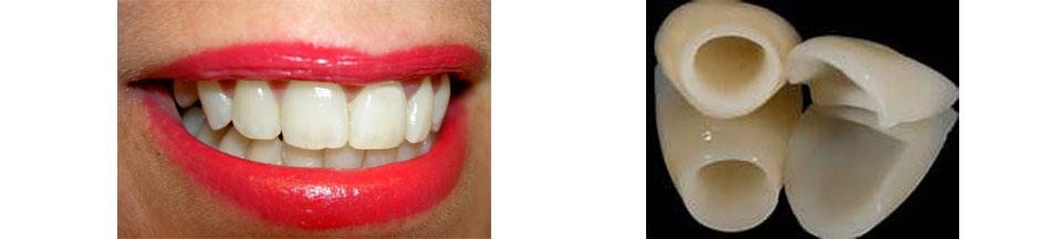 estetica dentale corone denti