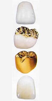 estetica dentale materiali corone