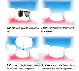 estetica dentale corona dente