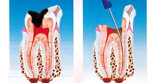 terapia canalare dott. marco dormi odontoiatra