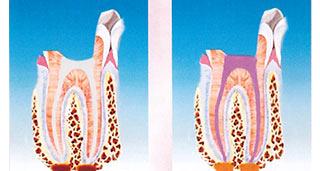 terapia canalare dente dott. marco dormi odontoiatra