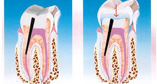 cura canalari denti dott. marco dormi odontoiatra