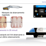 sbiancamento laser