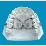 apparecchio dentale espansore palatale