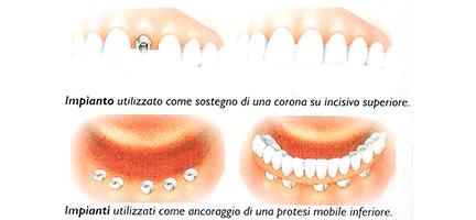 tipologie impianti dentali dott. marco dormi