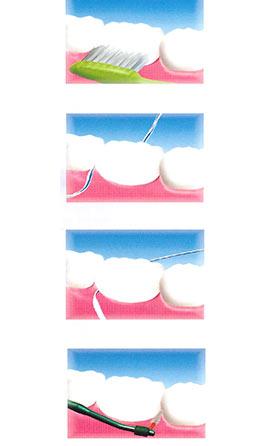 impianti dentali marco dormi