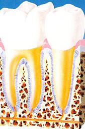 gengiva sana malattia parodontale