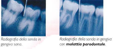 radiografia malattia parodontale