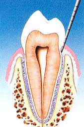 parodontite terapia dott. marco dormi odontoiatra