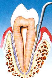 parodontite terapia