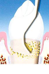 malattia parodontale levigatura radicolare