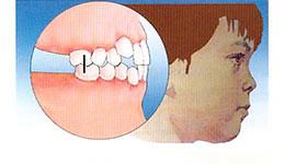 malocclusione denti