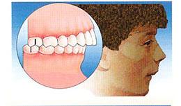 occlusione denti