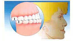 occlusione dente