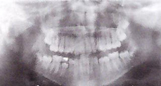 radiografia panoramica denti