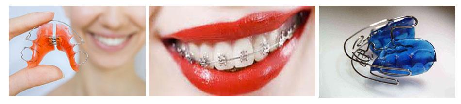 apparecchio dentale ortodonzia