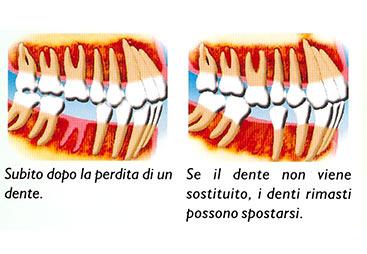 ponte dentale dott. marco dormi terni