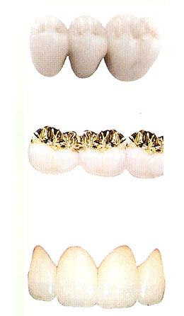 materiali ponte dentale dott. marco dormi terni