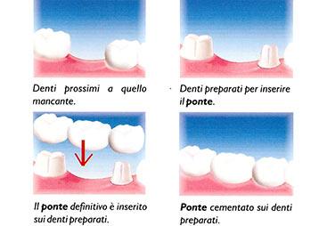 ponte dentale provvisorio