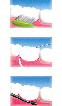 ponte dentale igiene orale